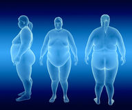 Overweight Female Royalty Free Stock Photography