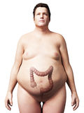 Overweight man - colon. 3d rendered illustration of an overweight man - colon Stock Photography