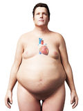 Overweight man - heart. 3d rendered illustration of an overweight man - heart Royalty Free Stock Photo