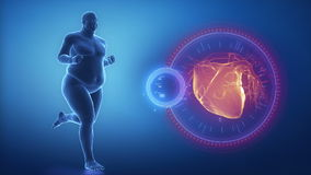 Overweight man heart issue stock video footage
