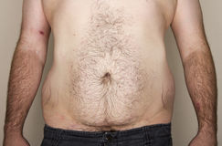 Overweight mans abdomen Stock Images