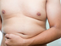 Overweight problem Stock Image