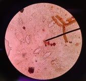 Ovos de Pinworm (vermicularis do Enterobius) fotografia de stock royalty free