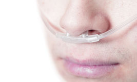 Oxygen tube on the face of a critically ill patient Royalty Free Stock Photos