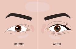 Pálpebras antes e depois dos procedimentos ilustração stock