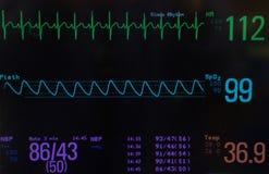 Pädiatrischer Vital Signs auf einem Monitor Lizenzfreie Stockfotos