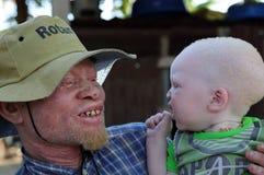 Père et fils albinos dans Ukerewe, Tanzanie image stock