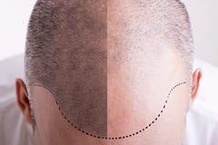 Pérdida de pelo - antes y después Imagen de archivo libre de regalías