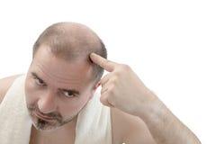 Pérdida de pelo de la calvicie de la alopecia del hombre aislada imagen de archivo libre de regalías