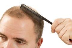 Pérdida de pelo del hombre de la alopecia de la calvicie Fotografía de archivo libre de regalías