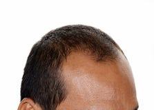 Pérdida de pelo, varón fotografía de archivo