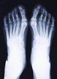 Pés do raio X imagens de stock royalty free