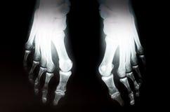 Pés do raio X Imagem de Stock
