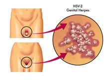 płciowy herpes ilustracji