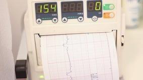 Płodowy bicie serca monitor, cardiotocography zdjęcie wideo
