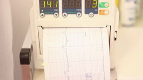 Płodowy bicie serca monitor, cardiotocography zbiory