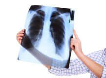 płuca mój Obrazy Stock
