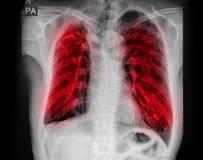 Płucnej gruźlicy TB: Klatki piersiowej promieniowania rentgenowskiego przedstawienia przydziąsłowa infiltracja przy oba płuco zdjęcie royalty free