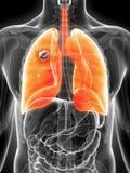 Płuco - nowotwór royalty ilustracja
