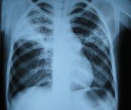 płuco promień x Obrazy Royalty Free