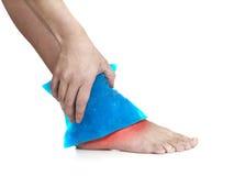 Pacchetto fresco del gel su una caviglia danneggiante gonfiata. Immagini Stock