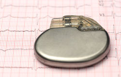 Pacemaker on electrocardiograph Stock Images