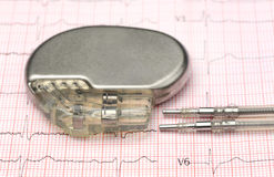 Pacemaker on electrocardiograph Royalty Free Stock Photos
