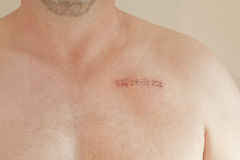 Pacemaker scar. On a male aged 45 Royalty Free Stock Photo