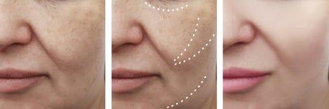 Paciente adulto facial fêmea dos enrugamentos antes após a dermatologia dos procedimentos da colagem do efeito foto de stock