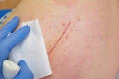 Paciente com a cicatriz longa fresca na configuração anca no mau do hospital Espaço livre da mão da enfermeira a pele foto de stock