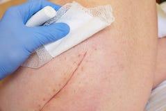 Paciente com a cicatriz longa fresca na configuração anca no mau do hospital Espaço livre da mão da enfermeira a pele imagens de stock royalty free