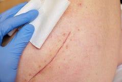 Paciente com a cicatriz longa fresca na configuração anca no mau do hospital Espaço livre da mão da enfermeira a pele imagem de stock
