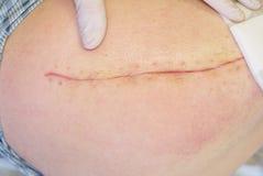 Paciente com a cicatriz longa fresca na configuração anca no mau do hospital Espaço livre da mão da enfermeira a pele imagens de stock