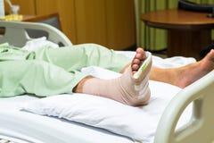Paciente com pé quebrado no molde e na atadura Imagens de Stock