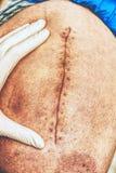 Paciente com uma cicatriz longa fresca após uma cirurgia anca Macro, pé humano fotografia de stock