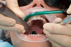 Paciente da menina com vidros da proteção com cintas dentais e retractor da boca durante o tratamento no escritório do dentista c foto de stock royalty free