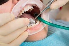 Paciente de la muchacha con los vidrios de la protección con los apoyos dentales y el retractor de la boca durante el tratamiento Foto de archivo