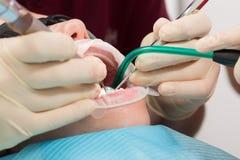 Paciente de la muchacha con los vidrios de la protección con los apoyos dentales y el retractor de la boca durante el tratamiento Imagen de archivo