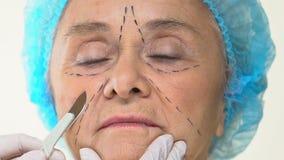 Paciente fêmea idoso com marcas da operação na cara, escalpelo da terra arrendada do cirurgião plástico vídeos de arquivo