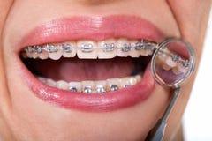 Paciente fêmea que mostra suas cintas relativas à língua no espelho dental fotos de stock