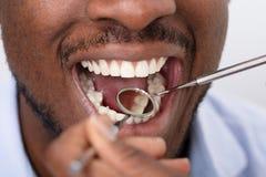 Paciente masculino que est? sendo verificado pelo dentista fotos de stock royalty free