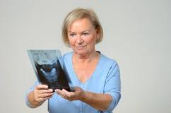 Paciente ou doutor idoso que olham um raio X foto de stock royalty free