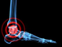 Pain in ankle Royalty Free Stock Photography