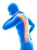Pain in the back Royalty Free Stock Photo
