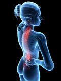 Pain in the back Royalty Free Stock Image