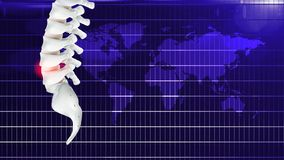 Pain in the bone or office  syndrome, or caused by prolonged work stock illustration