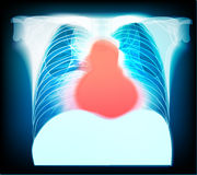 Pain in chest. Stock Images