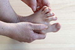 Pain on the feet. Dry skin on the feet. Pain on the feet. Athlete`s foot between the toes royalty free stock photos