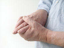 Pain in finger joints. A man with painful joints on his hands stock photos