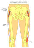 Pain in the hip joint iliotibial band syndrome royalty free illustration